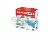 3M Spofaplast 431 Fix.náplast transp.fol.5mx12.5mm